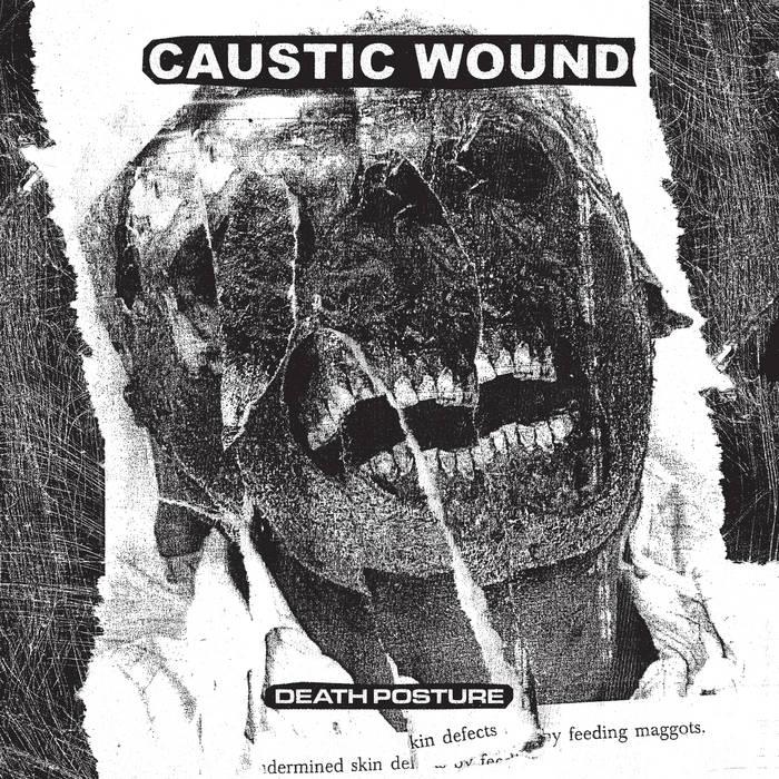 caustic wound death posture